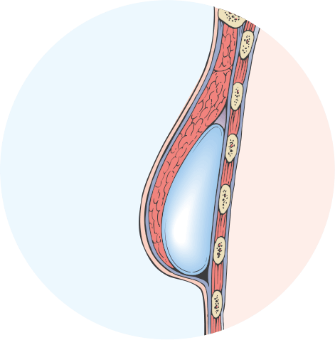 Cross Section diagram of tissue expander