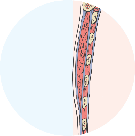 Cross Section diagram of removed breast tissue